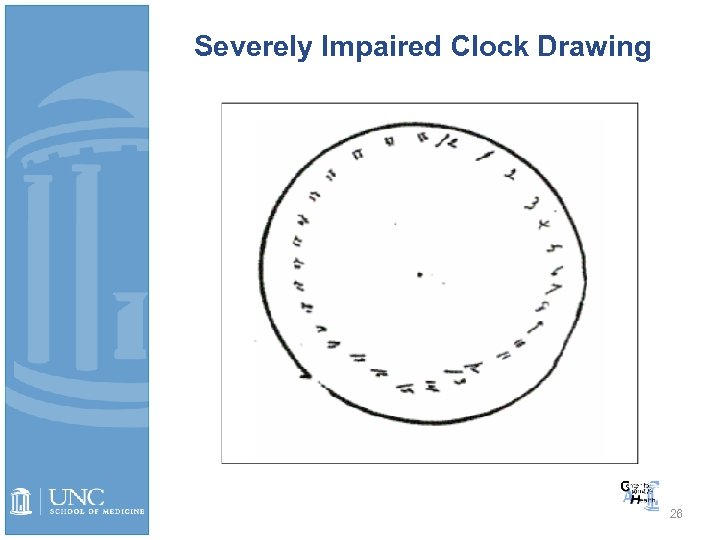 Severely Impaired Clock Drawing 26