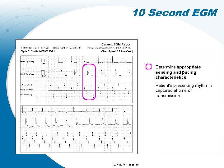 10 Second EGM Determine appropriate sensing and pacing characteristics Patient's presenting rhythm is captured