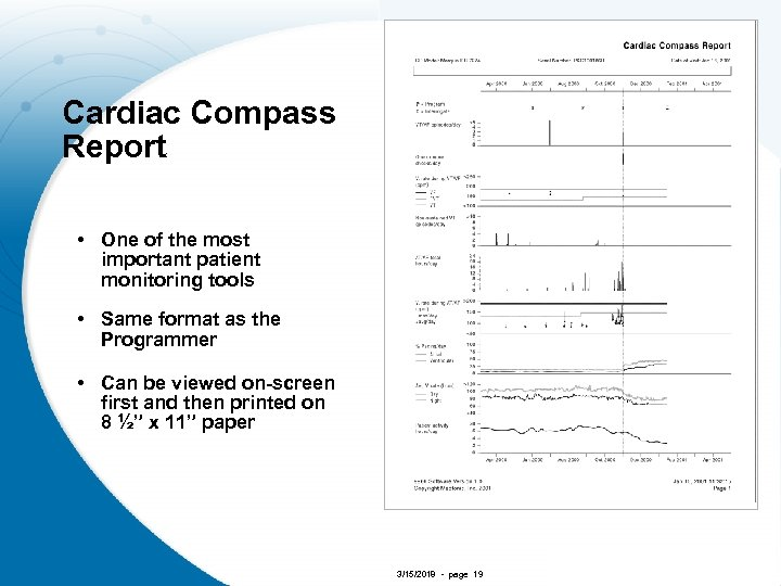 Cardiac Compass Report • One of the most important patient monitoring tools • Same