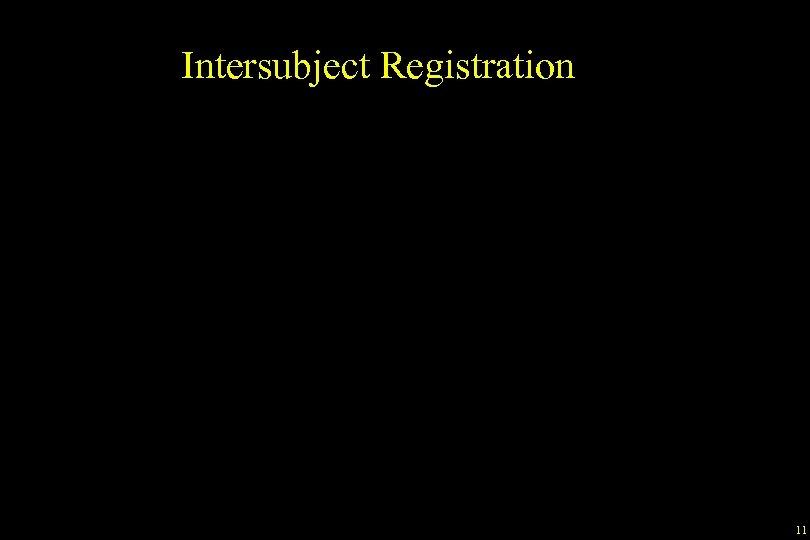 Intersubject Registration 11