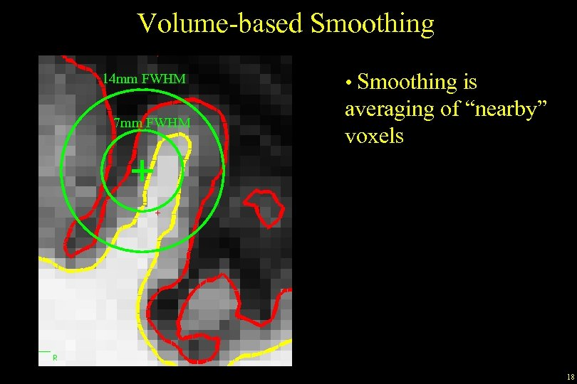 """Volume-based Smoothing 14 mm FWHM 7 mm FWHM • Smoothing is averaging of """"nearby"""""""