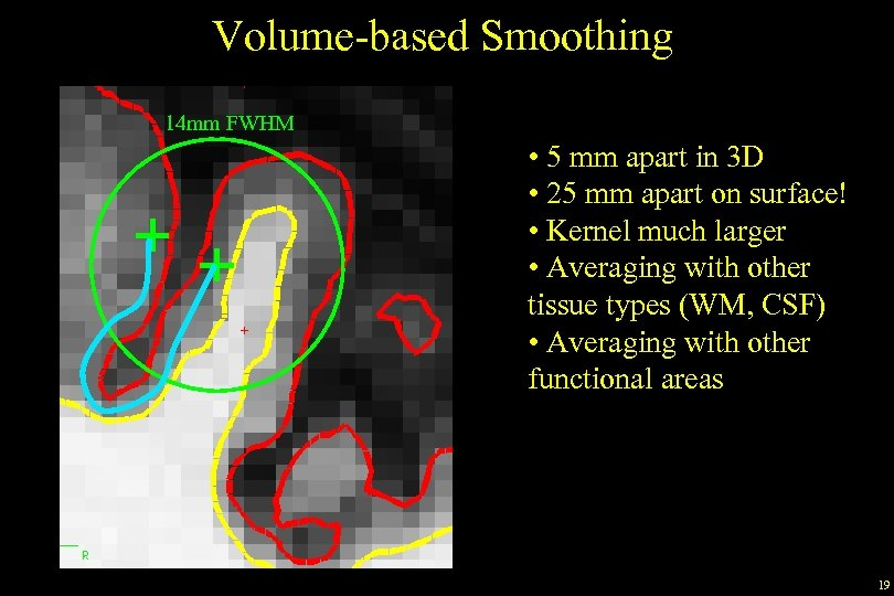 Volume-based Smoothing 14 mm FWHM • 5 mm apart in 3 D • 25