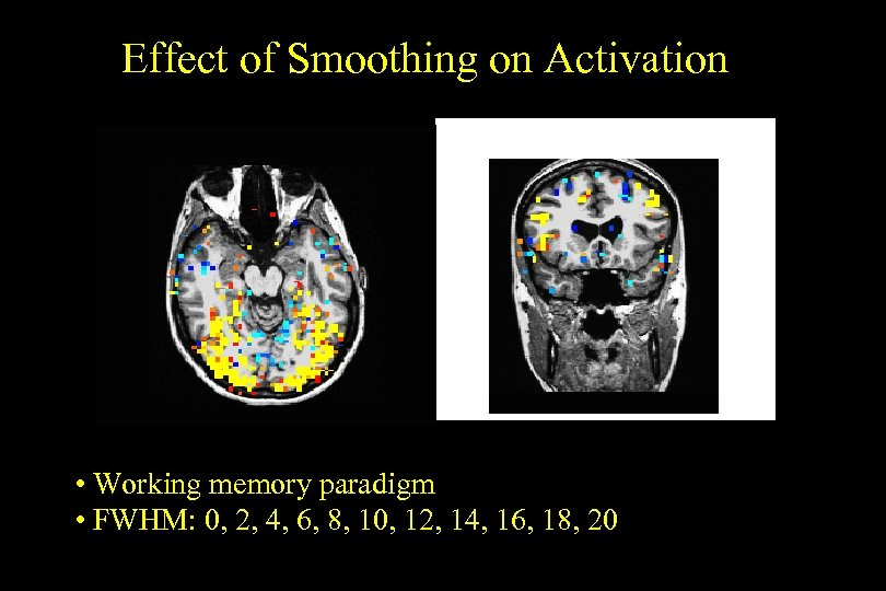 Effect of Smoothing on Activation • Working memory paradigm • FWHM: 0, 2, 4,