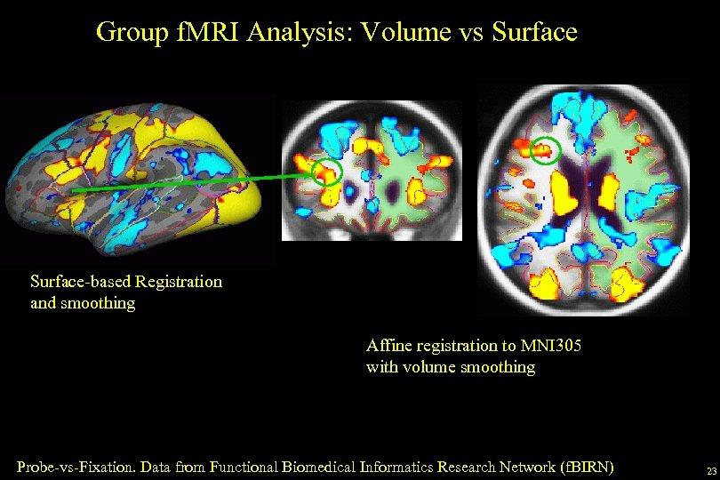 Group f. MRI Analysis: Volume vs Surface-based Registration and smoothing Affine registration to MNI