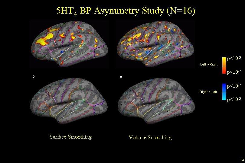 5 HT 4 BP Asymmetry Study (N=16) p<10 -3 Left > Right p<10 -2
