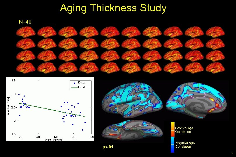 Aging Thickness Study N=40 Positive Age Correlation p<. 01 Negative Age Correlation 5