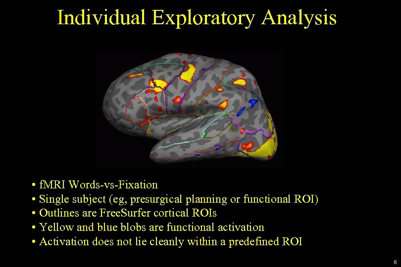 Individual Exploratory Analysis • f. MRI Words-vs-Fixation • Single subject (eg, presurgical planning or