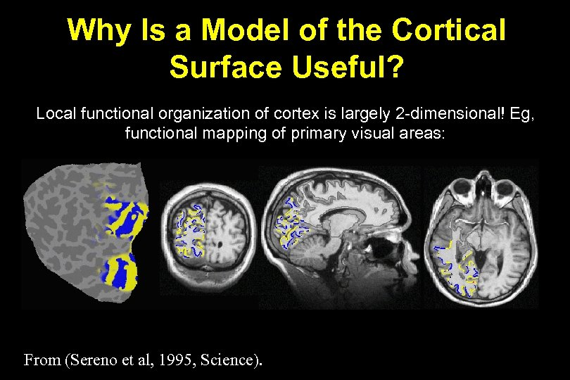 Why Is a Model of the Cortical Surface Useful? Local functional organization of cortex