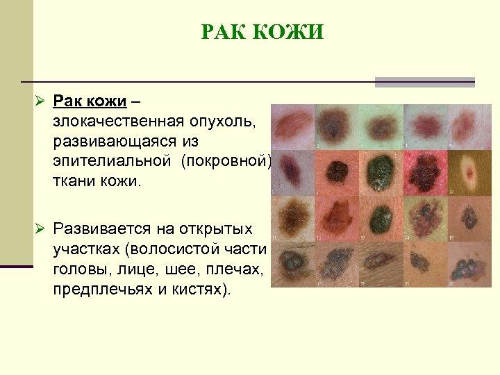 РАК КОЖИ Ø Рак кожи – злокачественная опухоль, развивающаяся из эпителиальной (покровной) ткани кожи.