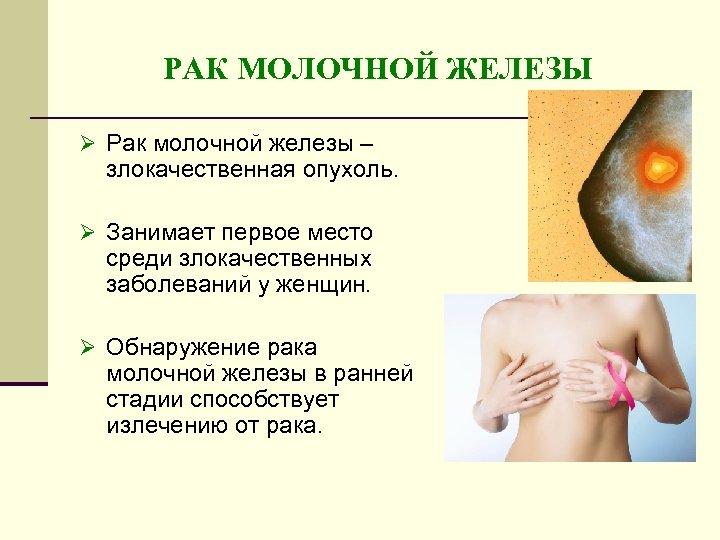 РАК МОЛОЧНОЙ ЖЕЛЕЗЫ Ø Рак молочной железы – злокачественная опухоль. Ø Занимает первое место