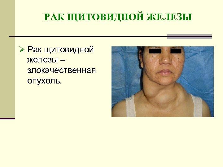 РАК ЩИТОВИДНОЙ ЖЕЛЕЗЫ Ø Рак щитовидной железы – злокачественная опухоль.
