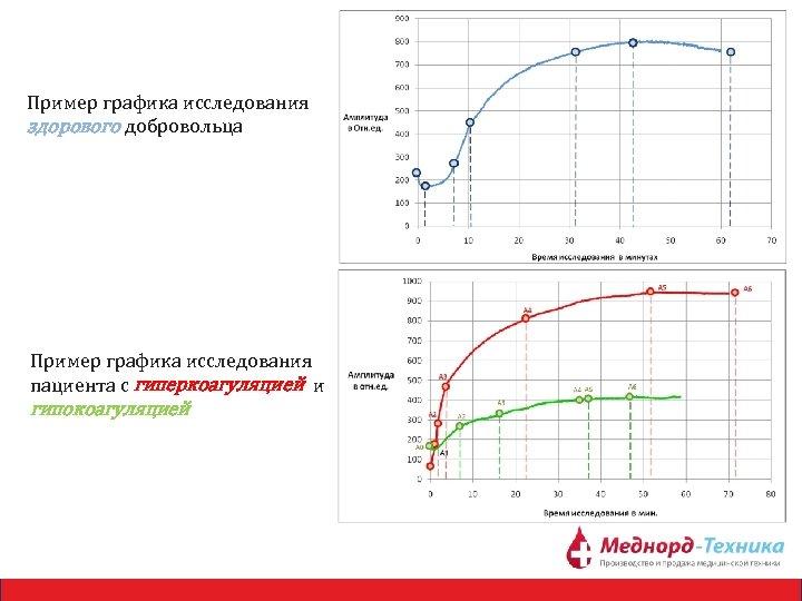 Пример графика исследования здорового добровольца Пример графика исследования пациента с гиперкоагуляцией и гипокоагуляцией