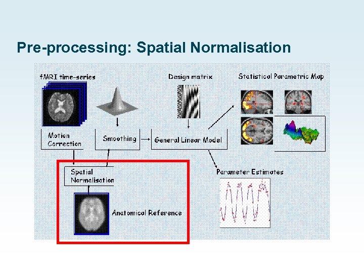 Pre-processing: Spatial Normalisation