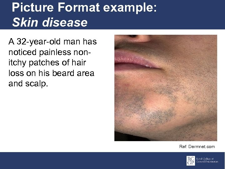 Picture Format example: Skin disease A 32 -year-old man has noticed painless nonitchy patches