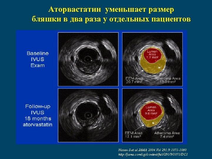 Аторвастатин уменьшает размер бляшки в два раза у отдельных пациентов Nissen S et al.