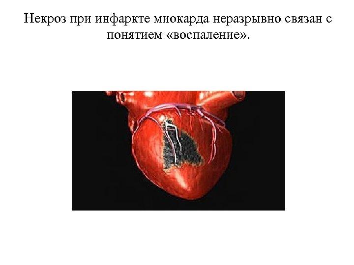 Некроз при инфаркте миокарда неразрывно связан с понятием «воспаление» .
