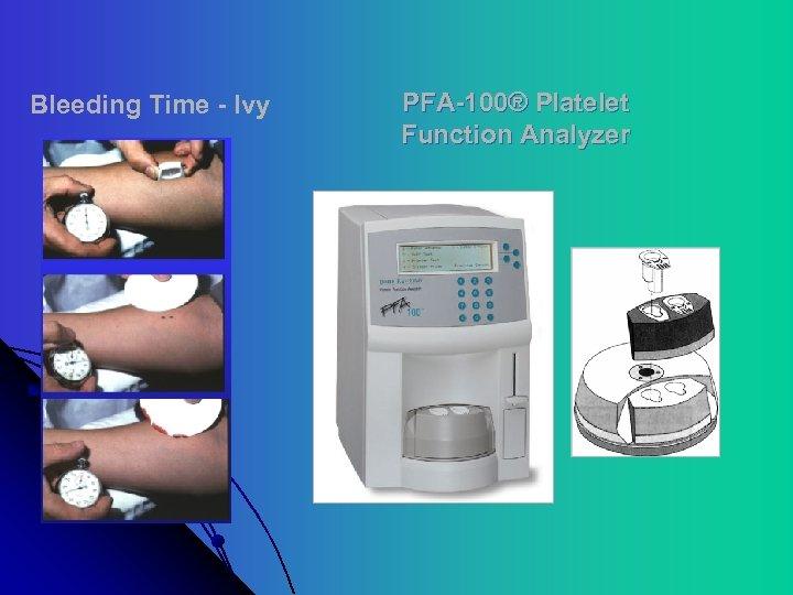Bleeding Time - Ivy PFA-100® Platelet Function Analyzer