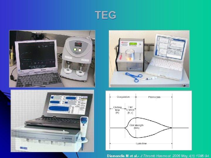TEG Diamandis M et al. - J Thromb Haemost. 2006 May; 4(5): 1086 -94.