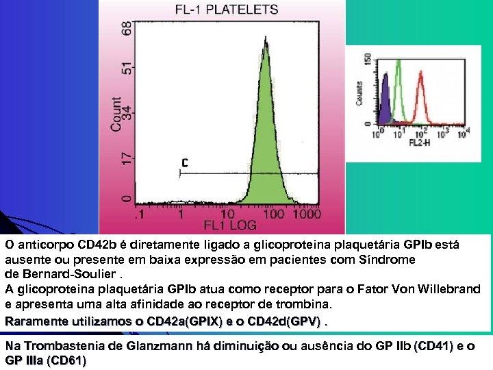 O anticorpo CD 42 b é diretamente ligado a glicoproteina plaquetária GPIb está ausente