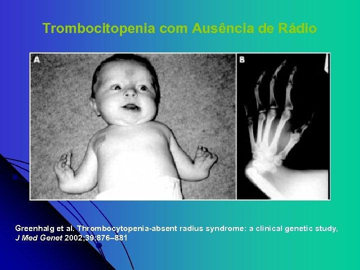 Trombocitopenia com Ausência de Rádio Greenhalg et al. Thrombocytopenia-absent radius syndrome: a clinical genetic
