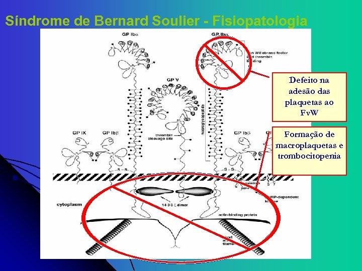 Síndrome de Bernard Soulier - Fisiopatologia Sítio de Ligação Defeito na com o Fv.