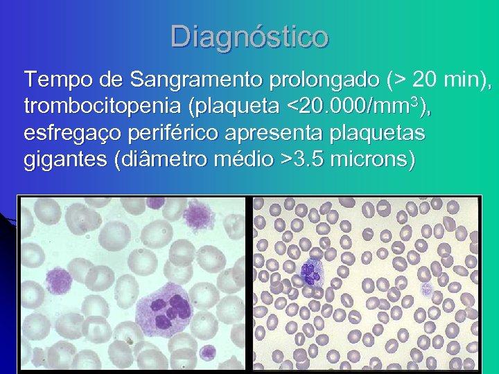 Diagnóstico Tempo de Sangramento prolongado (> 20 min), trombocitopenia (plaqueta <20. 000/mm 3), esfregaço
