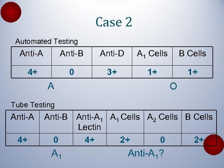 Case 2 Automated Testing Anti-A Anti-B Anti-D A 1 Cells B Cells 4+ 0
