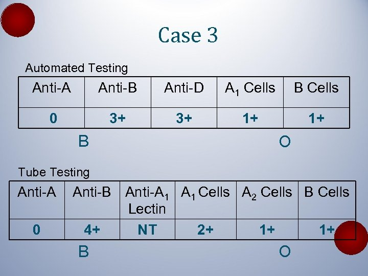 Case 3 Automated Testing Anti-A Anti-B Anti-D A 1 Cells B Cells 0 3+