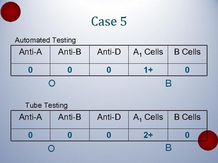 Case 5 Automated Testing Anti-A Anti-B Anti-D A 1 Cells B Cells 0 0