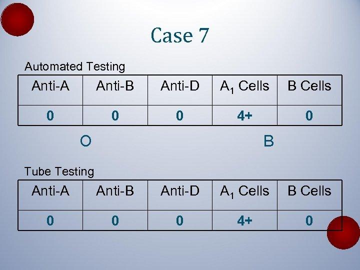 Case 7 Automated Testing Anti-A Anti-B Anti-D A 1 Cells B Cells 0 0