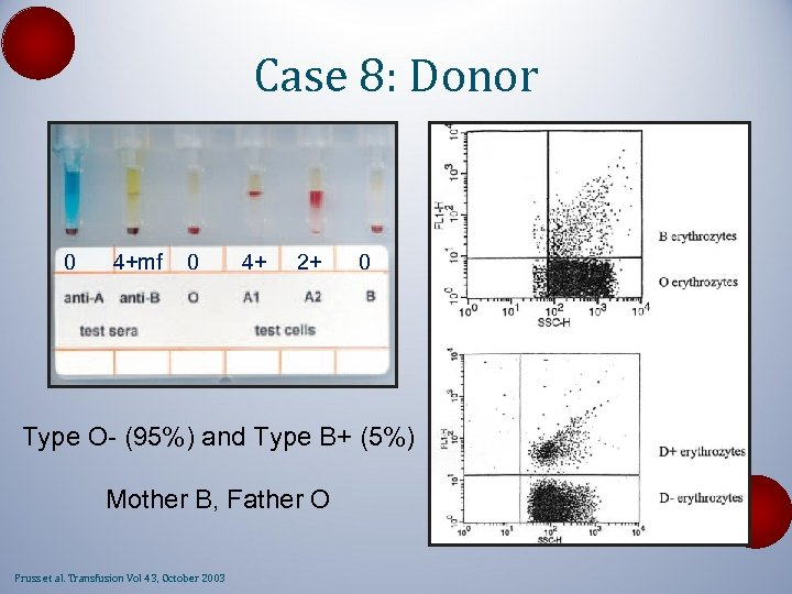 Case 8: Donor 0 4+mf 0 4+ 2+ 0 Type O- (95%) and Type