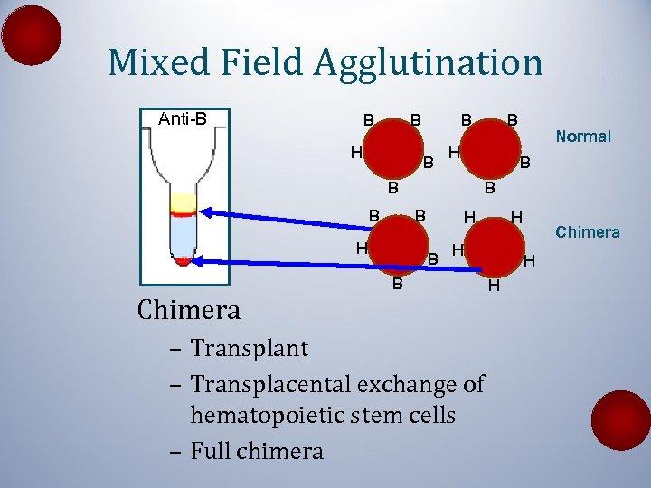 Mixed Field Agglutination Anti-B B B H Chimera B B H Normal B B