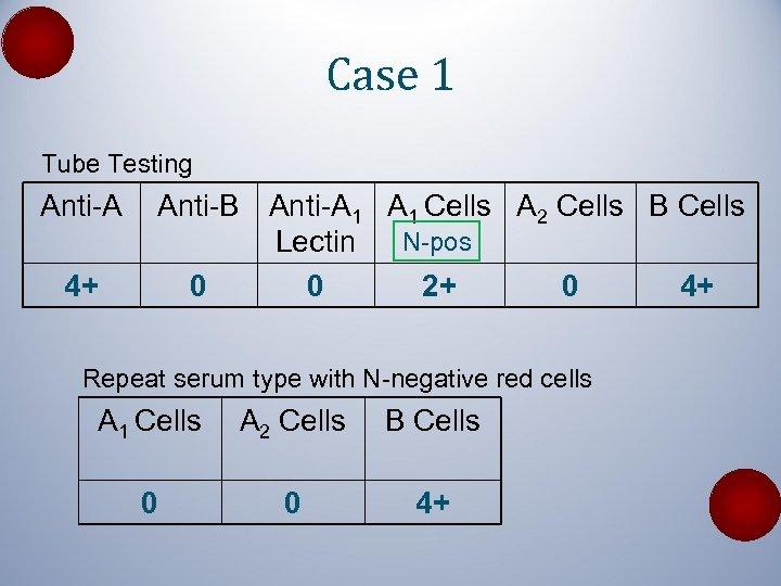 Case 1 Tube Testing Anti-A 4+ Anti-B Anti-A 1 Cells A 2 Cells B