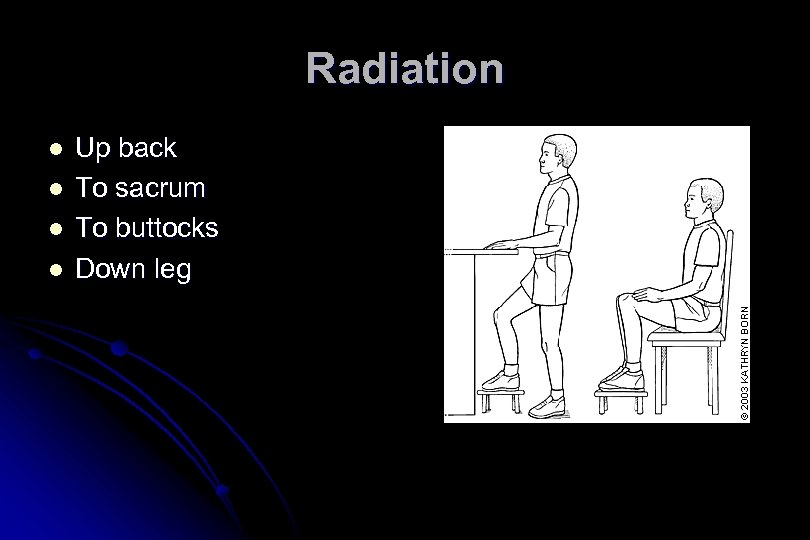 Radiation l l Up back To sacrum To buttocks Down leg