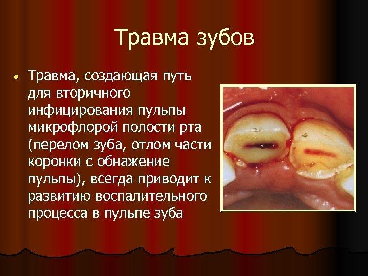 Травма зубов • Травма, создающая путь для вторичного инфицирования пульпы микрофлорой полости рта (перелом