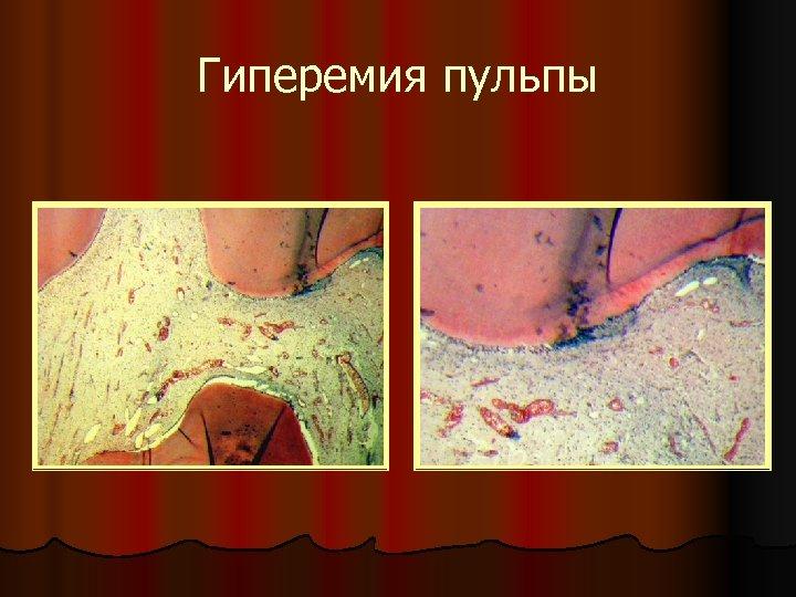 Гиперемия пульпы