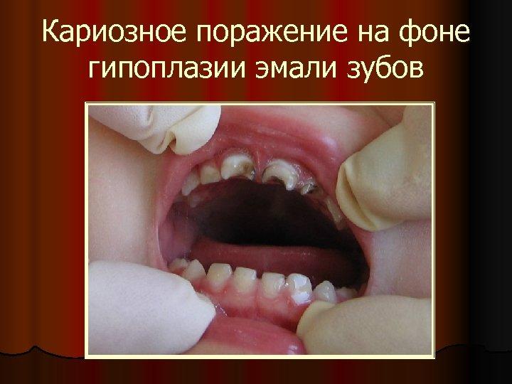 Кариозное поражение на фоне гипоплазии эмали зубов