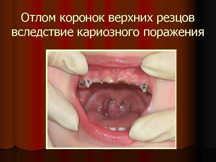 Отлом коронок верхних резцов вследствие кариозного поражения