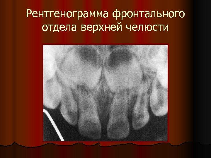 Рентгенограмма фронтального отдела верхней челюсти