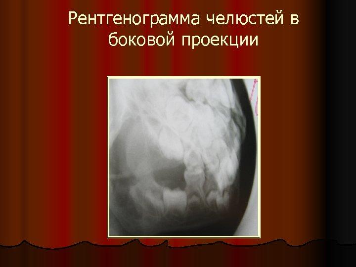 Рентгенограмма челюстей в боковой проекции