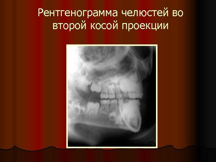 Рентгенограмма челюстей во второй косой проекции