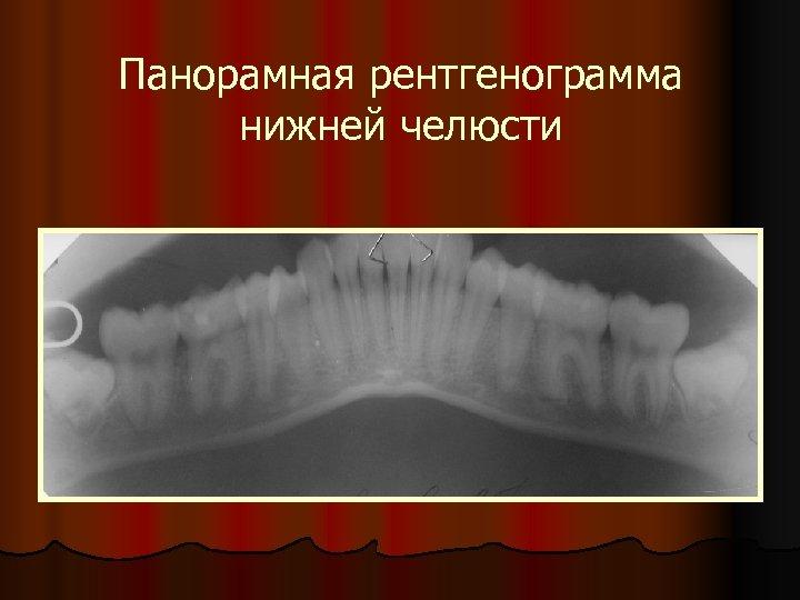 Панорамная рентгенограмма нижней челюсти