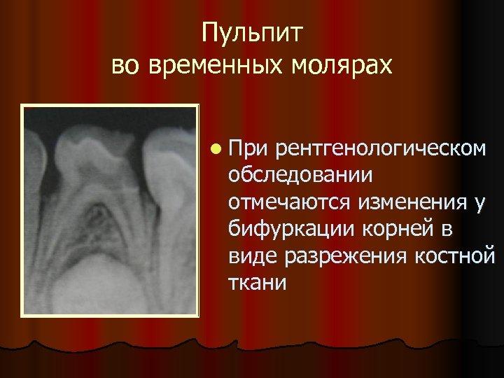 Пульпит во временных молярах l При рентгенологическом обследовании отмечаются изменения у бифуркации корней в