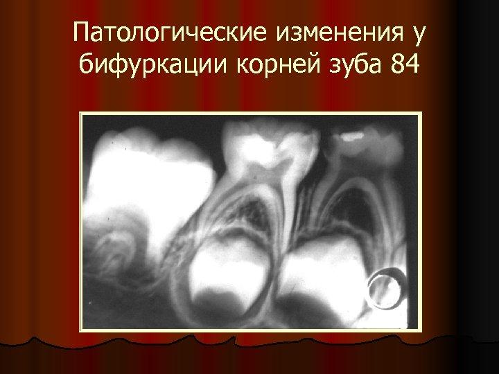 Патологические изменения у бифуркации корней зуба 84