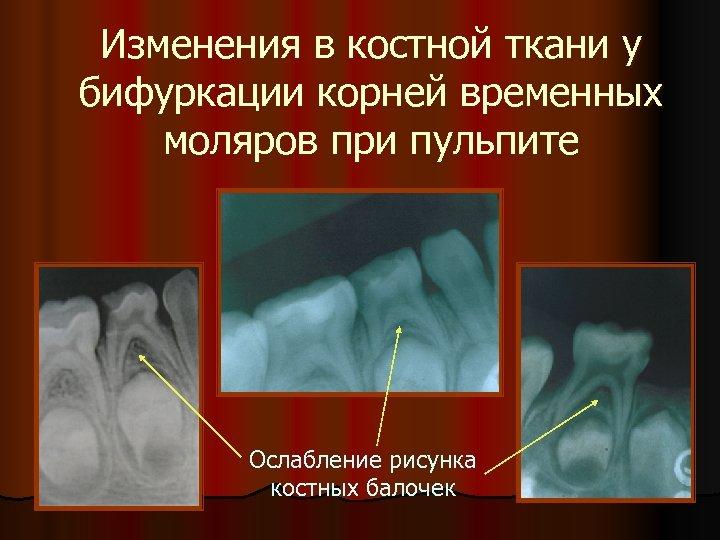 Изменения в костной ткани у бифуркации корней временных моляров при пульпите Ослабление рисунка костных