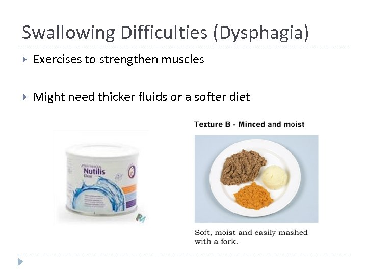 Swallowing Difficulties (Dysphagia) Exercises to strengthen muscles Might need thicker fluids or a softer