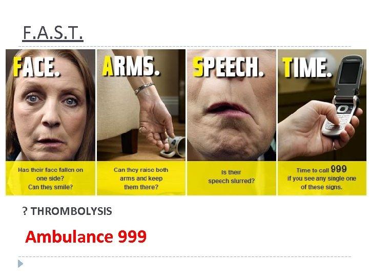 F. A. S. T. ? THROMBOLYSIS Ambulance 999
