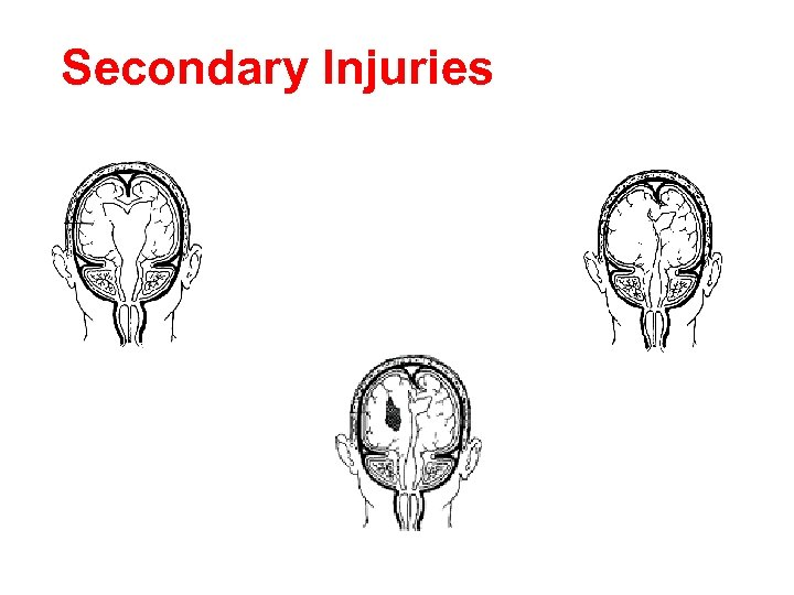 Secondary Injuries