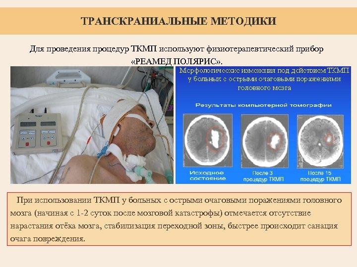ТРАНСКРАНИАЛЬНЫЕ МЕТОДИКИ Для проведения процедур ТКМП используют физиотерапевтический прибор «РЕАМЕД ПОЛЯРИС» . При