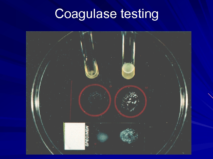 Coagulase testing